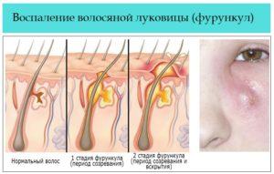 Как правильно вылечить воспаление волосяной луковицы? Воспаление волосяной луковицы в паху