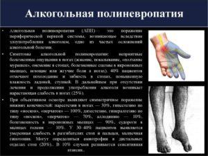 Полиневрит лечение. Полиневрит почек — что это, симптомы и лечение. Причины и симптомы