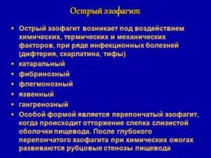 Эрозивный эзофагит: симптомы, причины, лечение. Классификация, симптоматика, диагностика и лечение эрозивного эзофагита