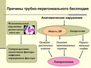 Трубно-перитонеальный фактор бесплодия. Трубный фактор и трубно-перитонеальное бесплодие. Методы лечения и ЭКО