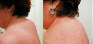 Как избавиться от нароста на шее сзади. Холка на шее. Как избавиться от холки на шее сзади? Как убрать горб на шее ударно-волновой терапией