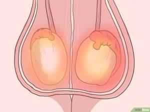 Орхит: воспаление яичка у мужчин: симптомы и лечение. Посидели на холодном - болит низ живота, яички, что делать