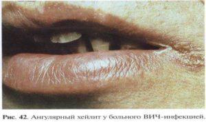 Как проявляется вич на лице и теле. Отличительные особенности сыпи при ВИЧ. Экзантемы и энантемы. Проявление вич инфекции на коже