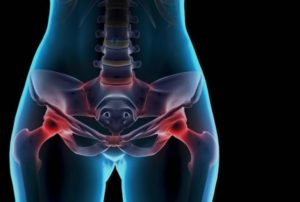 Почему возникают боли в области таза после родов и как их уменьшить? Причины боли в лобковой кости после родов