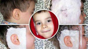 Как ставить спиртовой компресс на ухо. Сколько держать и как сделать компресс на ухо ребенку или взрослому
