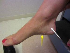 Что делать если ноги трещине. Как долго заживает трещина в кости