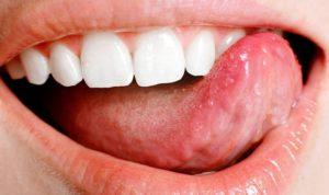 Под языком пузырь — что делать. Волдыри и пузырьки на языке: виды, причины возникновения, терапия