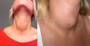 Злокачественная опухоль на шее. Откуда берется опухоль на шее