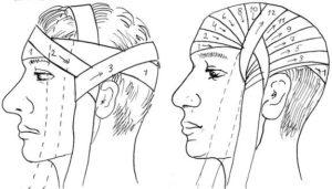 Как сделать повязку на голову из бинта. Наложение повязки на голову: особенности проведения процедуры