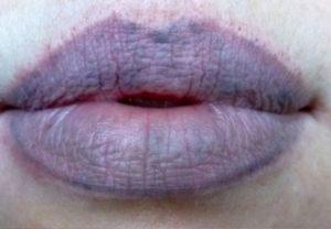 Почему иногда синеют губы. Почему губы становятся синими