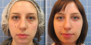 Как убрать впадины под глазами косметология. Как можно избавиться от впадин под глазами