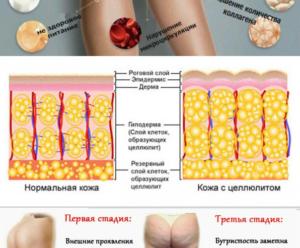Причины возникновения целлюлита. Причины появления целлюлита у женщин
