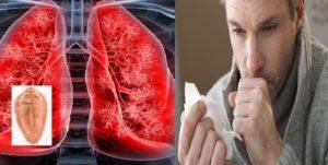 Бывает ли кашель при глистах у детей? Могут ли глисты вызывать кашель у ребенка: причины и лечение