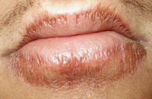 Красная окантовка вокруг губ. Болезни губ – причины, симптомы, лечение. Лечение воспаления уголков губ