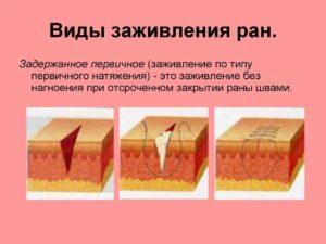 Не заживают раны на коже причины. Плохо заживают раны: причины. Общие принципы обработки