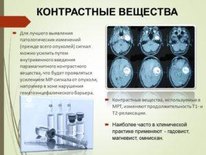 Кто должен вводить контрастное вещество. КТ с контрастным усилением — что покажет исследование? Вредно ли контрастное вещество
