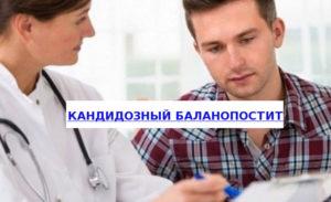 Симптомы и лечение кандидозного баланита. Причины и симптомы кандидозного баланита у мужчин