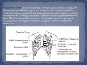 Что такое синдром Титце? Синдром Титце, или реберный хондрит: симптомы и лечение Воспаление грудного хряща
