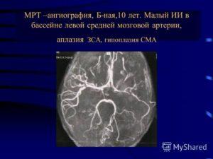 Что означает правая позвоночная артерия малого диаметра. Гипоплазия задних соединительных артерий головного мозга