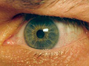 Желто красные глаза причины. Причины появления, симптомы и лечение желтых глаз