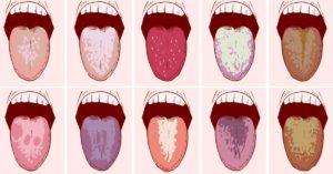 Причины крови и ее привкус во рту. Ощущение крови в горле