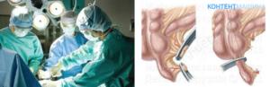 Неосложненный послеоперационный период. Может ли быть запор после аппендицита, что делать? Запоры после операции по удалению аппендицита