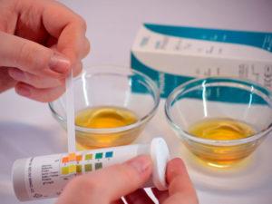 Ацетон симптомы. Какие анализы и обследования может назначить врач при ацетоне в моче? Как определить наличие ацетона