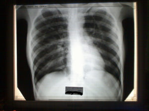 Дырки в легких после пневмонии. Дырка в легком после пневмонии