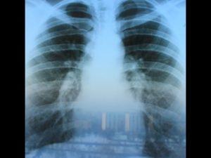 Остаточные явления после пневмонии. Отчего появляются рубцы на легких