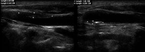 Узи сонных артерий как называется. Узи сонных и позвоночных артерий. Ультразвуковое исследование артерий шеи