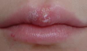 Белые волдыри на губах у ребенка. На губе большой пузырь