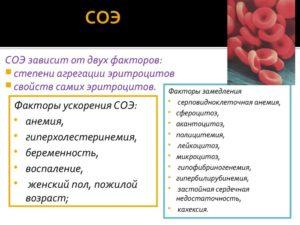 Народные средства для понижения соэ в крови. Как снизить СОЭ в крови у женщин — эффективные методы. Причины повышения СОЭ