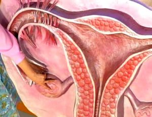 Возможна ли беременность при дисфункции яичников. Можно ли забеременеть с одним яичником