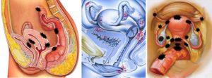 Какими болями проявляется эндометриоз. Как избавиться от болей при эндометриозе у женщин