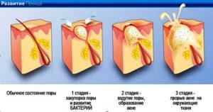 Прыщи и угри — в чем разница? Отличия и способы лечения. Почему они появляются. Из зелёного чая