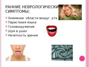 Немеет язык и кружится голова. Онемение языка при беременности. Причины, почему немеет язык и кружится голова