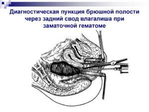 Техника пункции заднего свода в гинекологии. Алгоритм пункции брюшной полости через задний свод влагалища. Последовательность проведения процедуры