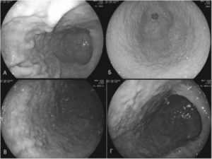 Лимфофолликулярная гиперплазия слизистой желудка: симптомы и лечение. Что такое очаговая гиперплазия слизистой желудка и её разновидности