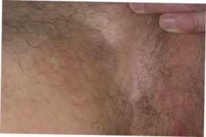 Множество подкожных уплотнений в паху у мужчин. Боль, появившаяся в паховой области и ноге. Развитие злокачественных опухолей в паху