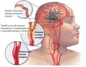 ЦВБ (Цереброваскулярная болезнь, недостаточность) — какие осложнения могут быть, прогноз специалиста