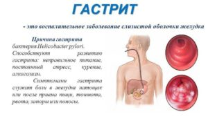 Ощущение пустоты в желудке даже после еды. Ощущение пустого желудка после еды. Действия при признаках заболевания