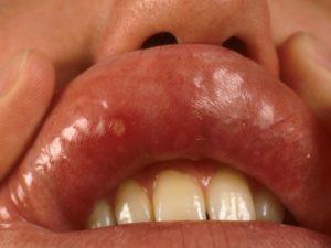 Гнойник во рту на губе. Что делать, если появилась болячка на губе? Что это может быть