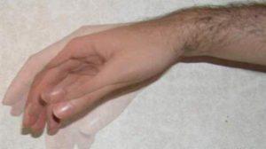Что такое тремор конечностей. Основные причины дрожи в ногах Почему трясутся ноги у пожилых