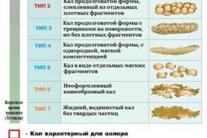 Овечий кал у человека: причины и опасность симптома. Кал как козий горох у взрослого лечение народными средствами
