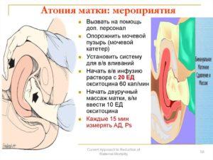 Что такое атония матки. Атония матки