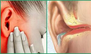 Почему хрустят уши при надавливании. Почему появляется треск в ухе и как от него избавиться