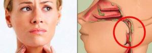 Постоянные выделения из носа по задней стенке. Диагностика слизи в горле: когда стоит обратиться к врачу? Причины стекания слизи по задней стенке горла