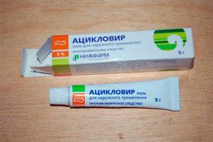 Мазь от малярии на губах дешевая. Лечение малярии в домашних условиях, профилактика заболевания