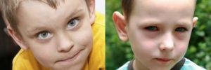 Синяки под глазами у ребенка комаровский. У ребенка под глазами синяки: возможные причины, уход, методы лечения