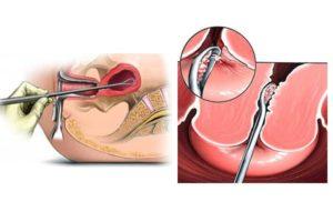 После чистки эндометриоза когда должны придти месячные. Что такое выскабливание? Как выскабливание влияет на женский организм